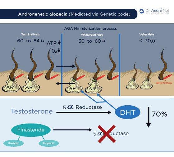 Androgenetic Alopecia Miniaturization