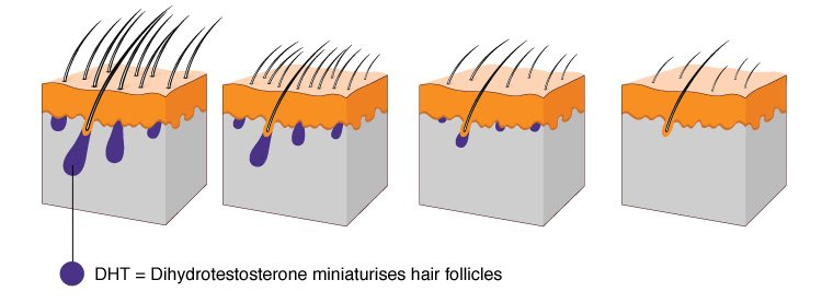 about-hair-loss_01